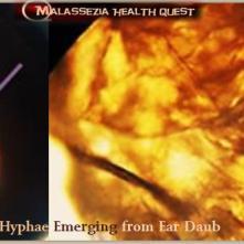 Malassezia Hyphae in Ear Scrapings1-MQ