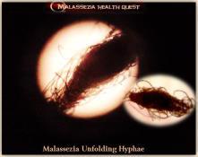 Malassezia Unfolding Hyphae3-1 -MQ