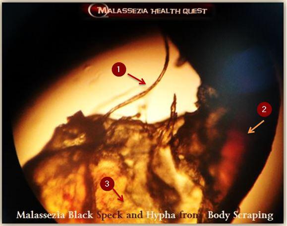 Malasseia Black Speck 1-MQ