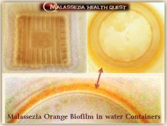 Malassezia Biofilm Layer 3 -MQ