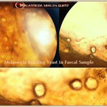 Malassezia Budding Yeast 8-MQ