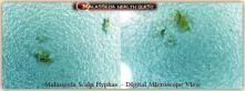 Scalp Hyphae- MQ
